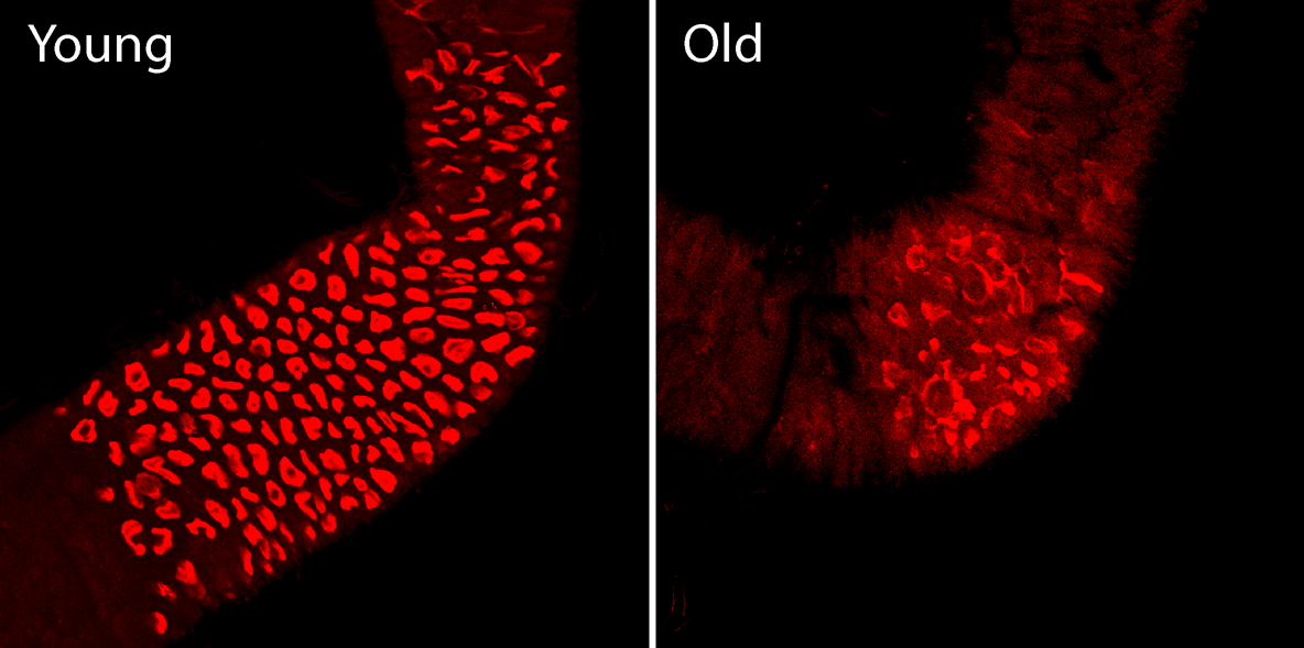 Inhibiting Age Related Inflammation Maintains Healthy Gut