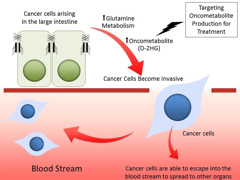metabolite that promotes cancer cell transformation and