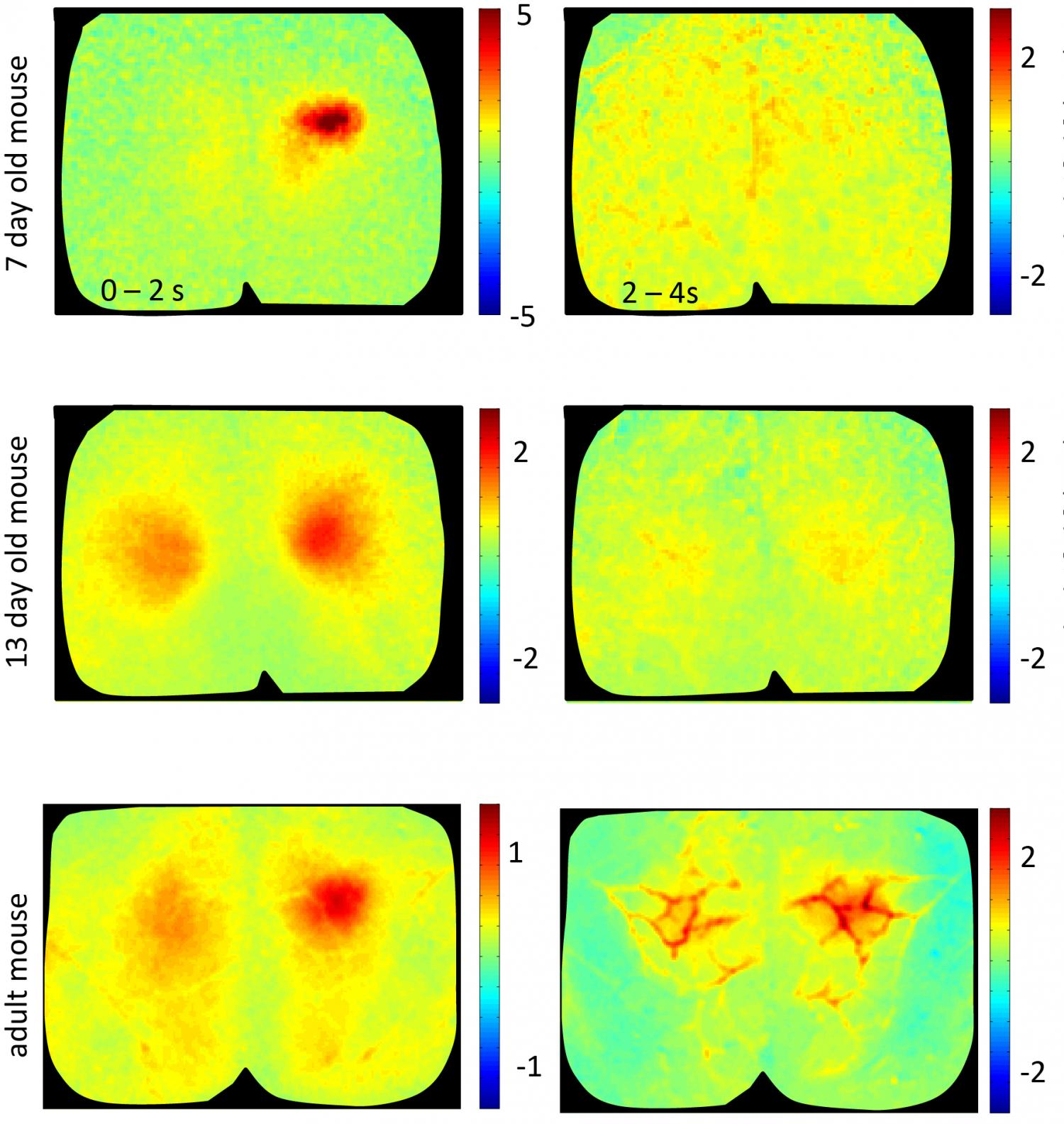 view of brain development: Striking differences between adult and ...