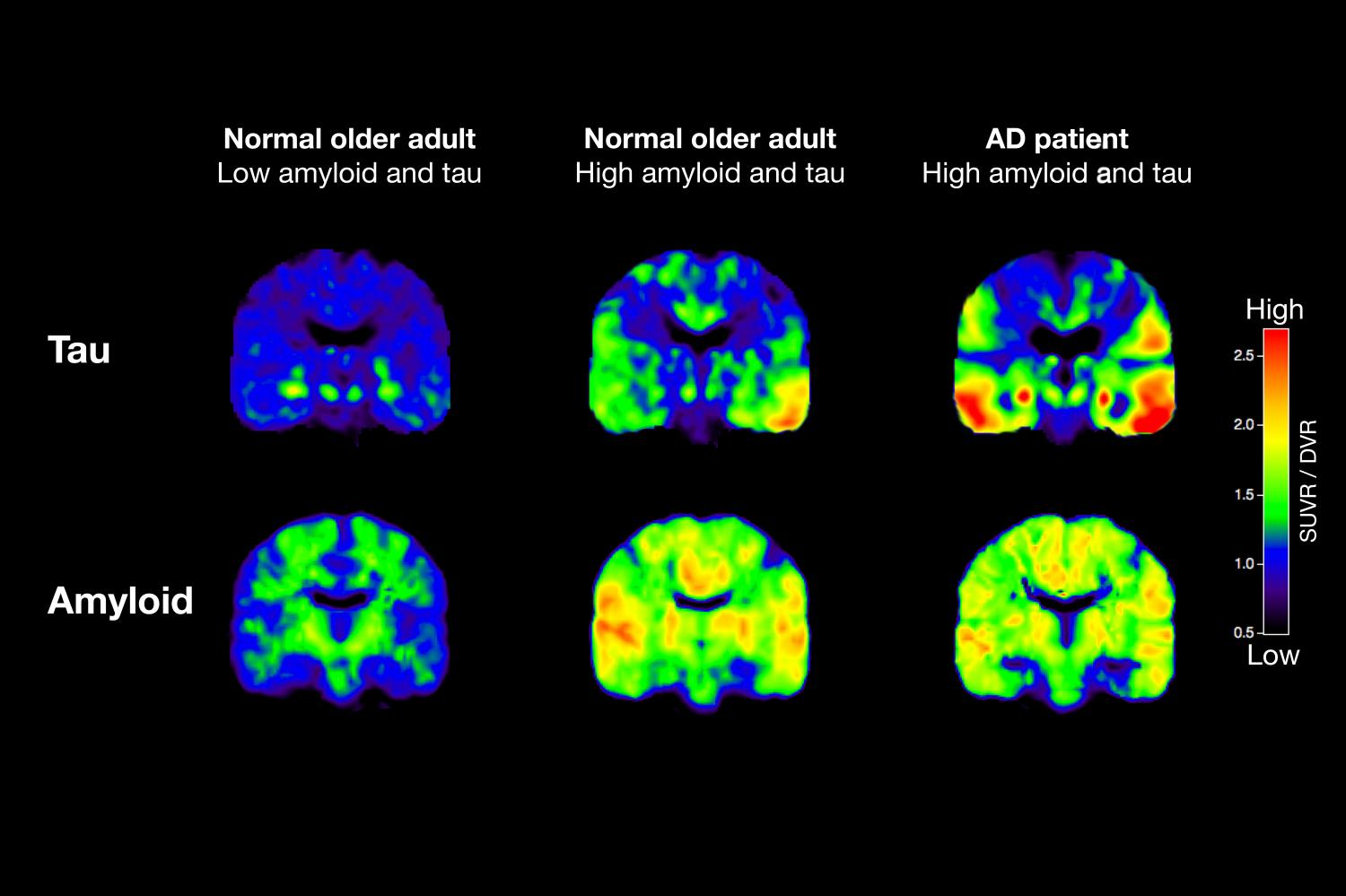 Is a Protein in the Brain Key to Alzheimer's