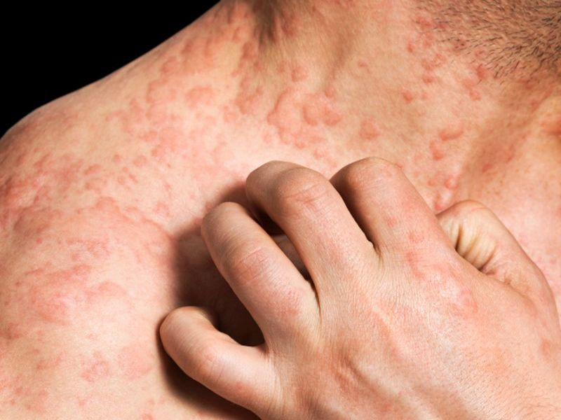 topical steroid injection side effects