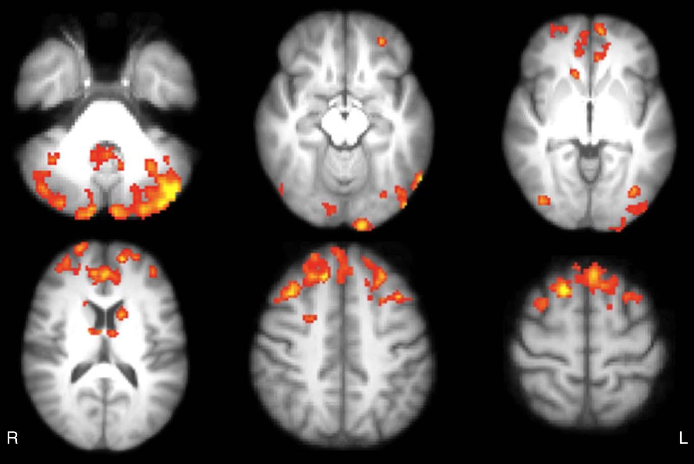 Multiple Sclerosis Symptoms Video games improve br...