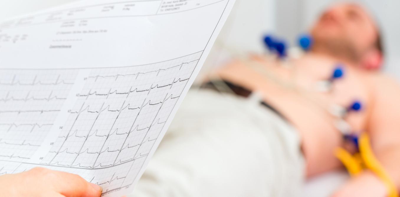 Weight Loss Can Combat Irregular Heart Beat, Study Says advise