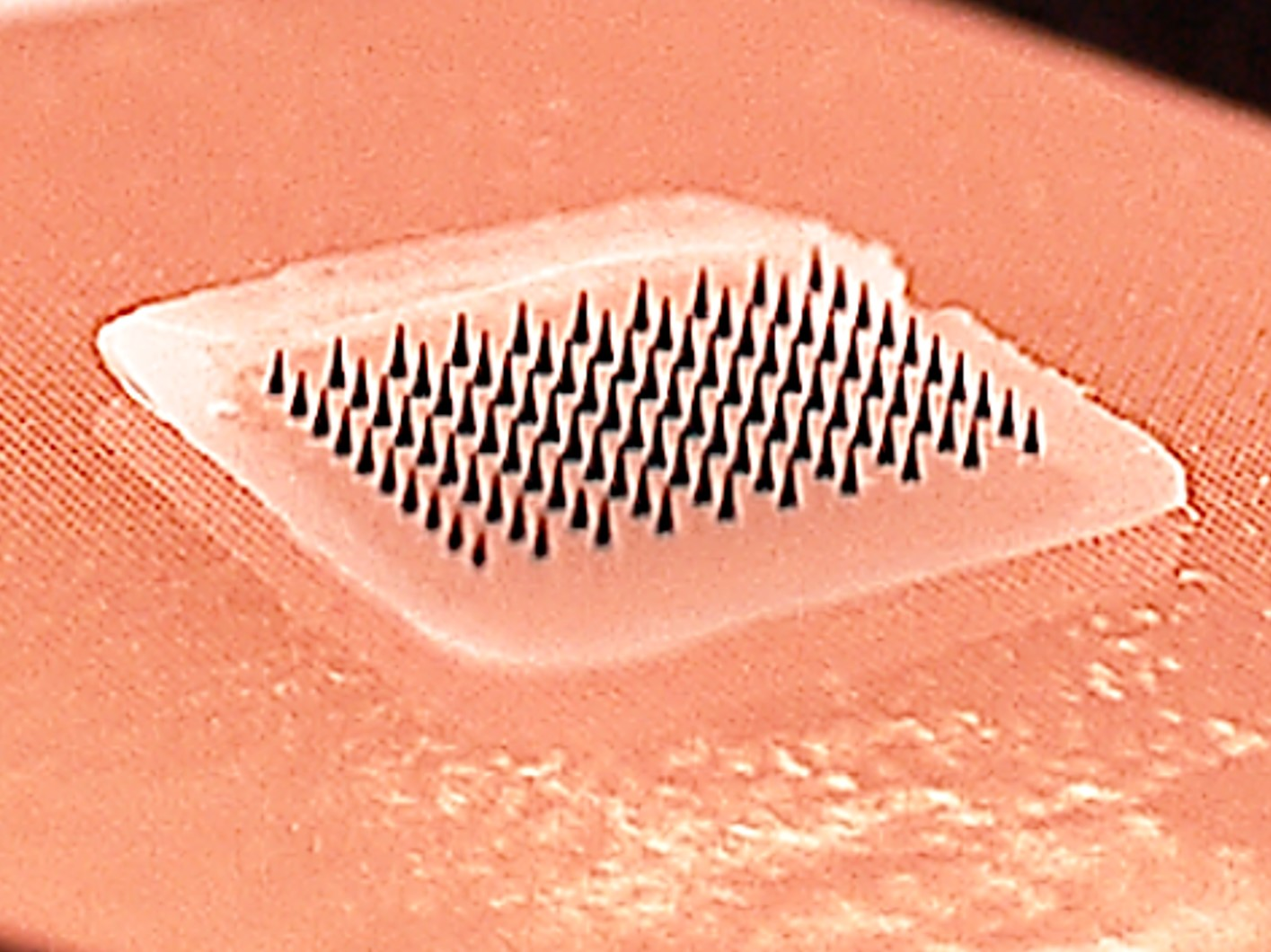 Microneedle patches for flu vaccination prove successful in first human clinical trial