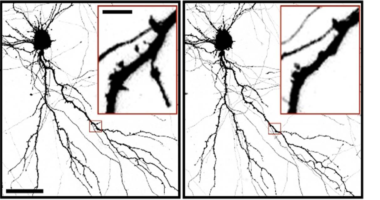 During a brain injury neurons are damaged. After damage they lose spines on their dendrites as shown in the image on the right. Credit Taylor Lab  sc 1 st  Medical Xpress : wiring brain - yogabreezes.com