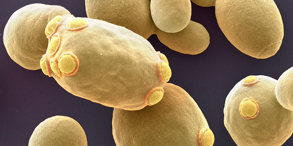 A protein that extends life of yeast cells 440107574