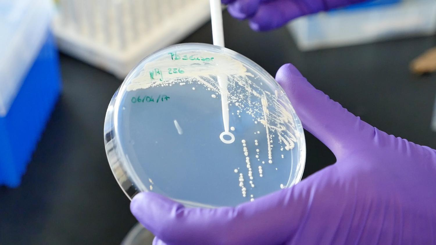 researchers develop yeast based tool for worldwide pathogen detection