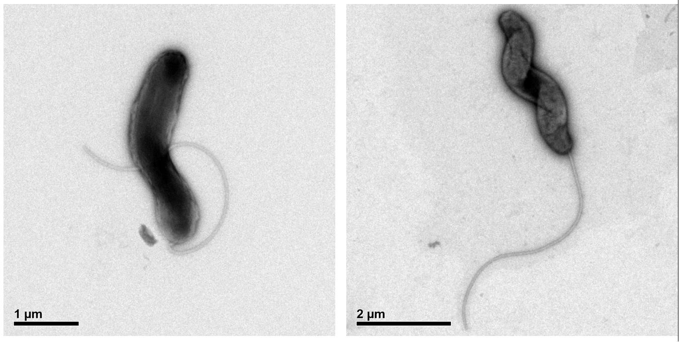 Marinomonas promoryiensis em duas imagens obtidas por microscopia eletrônica. [Crédito: Dylan Atkins]