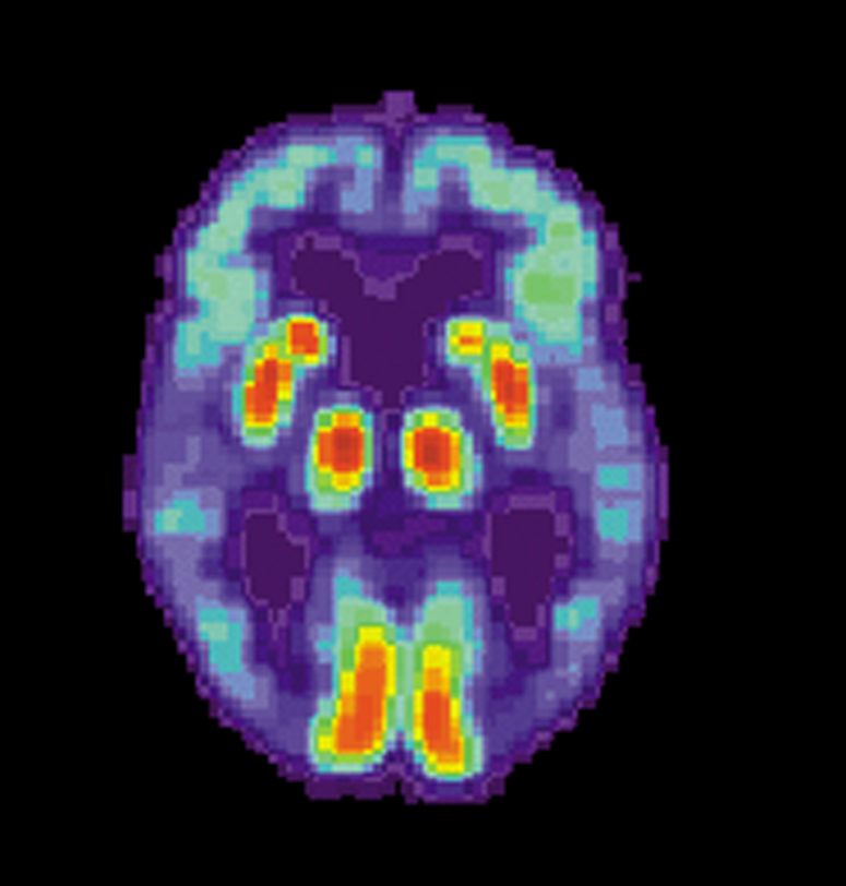 Pathway of Alzheimer's degeneration discovered