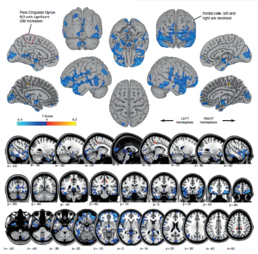 Astronauts' brains change shape during spaceflight