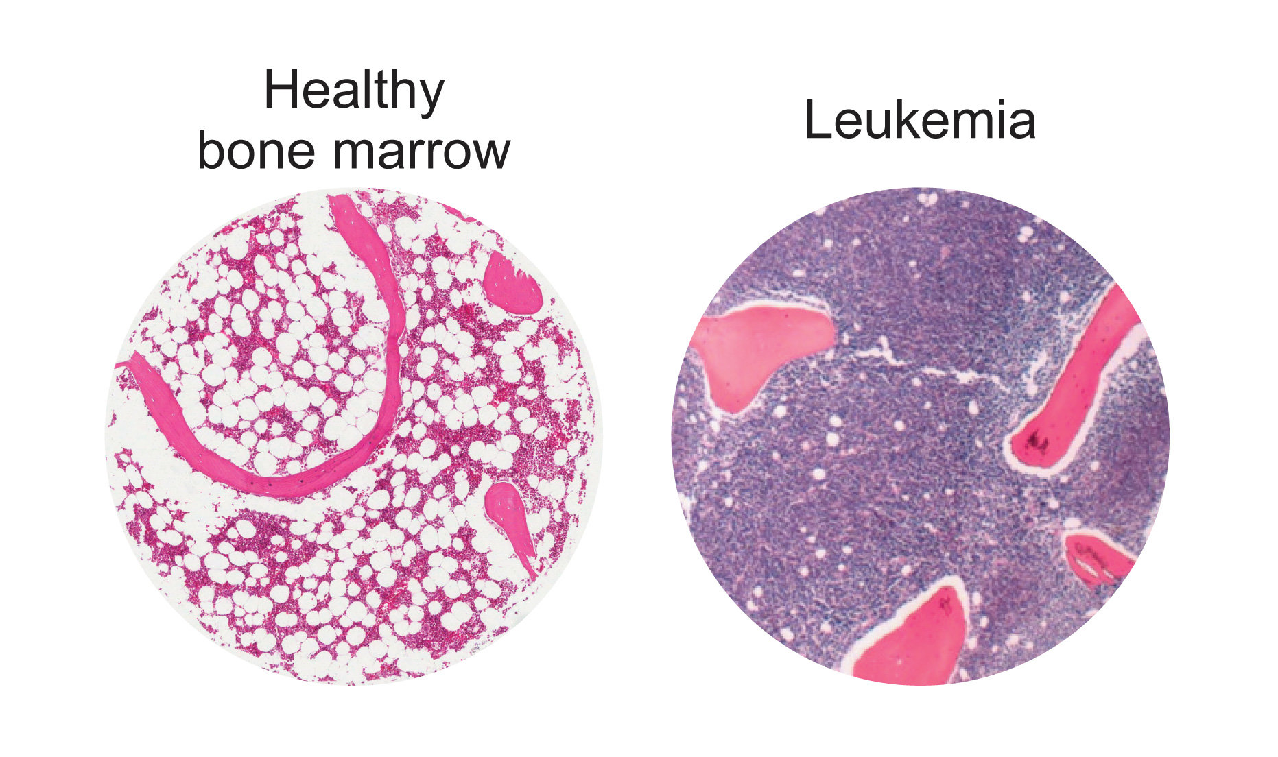 an analysis of the fatal disease leukemia a cancer of the blood Learn about chronic lymphocytic leukemia diagnosis in blood diseases and cancer) is injected into the blood because cancer cells.
