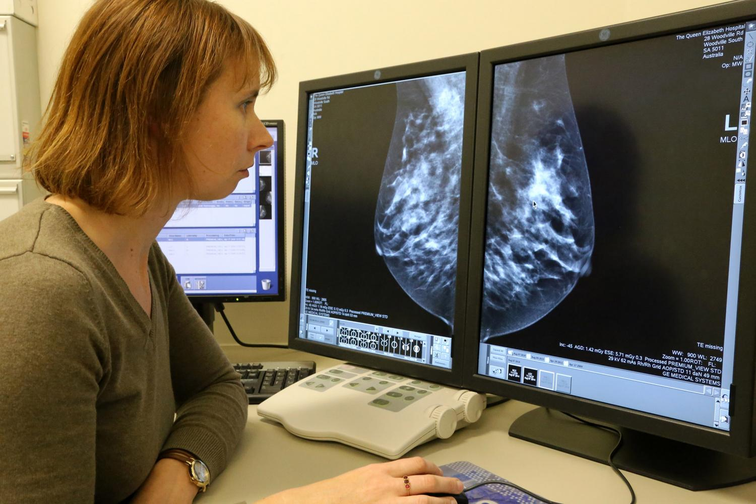 Image result for Breast cancer risk, prevention and detection