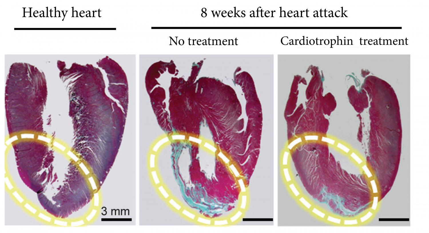 The Man Who Cured Heart Disease With a Natural Molecule ... |Heart Scar Tissue