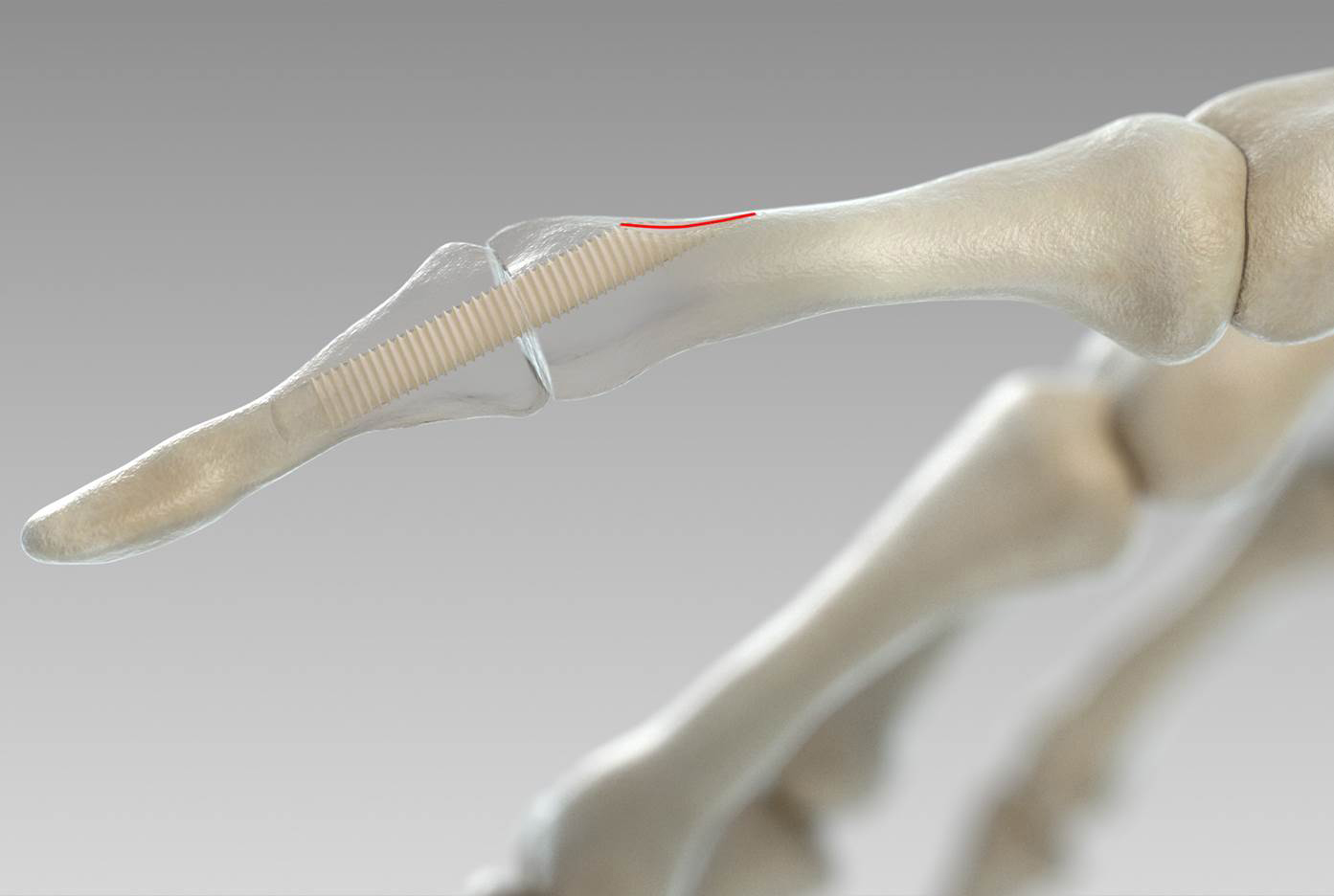 Making Surgical Screws From Bones