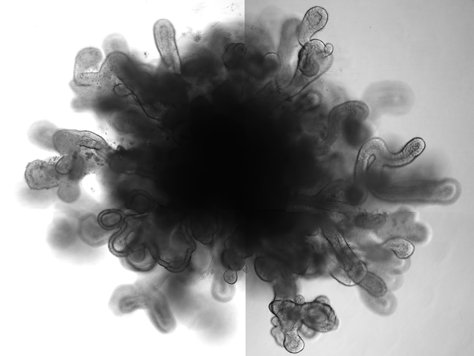 New Lung Organoids In A Dish Mimic Features Of Full Size Lung
