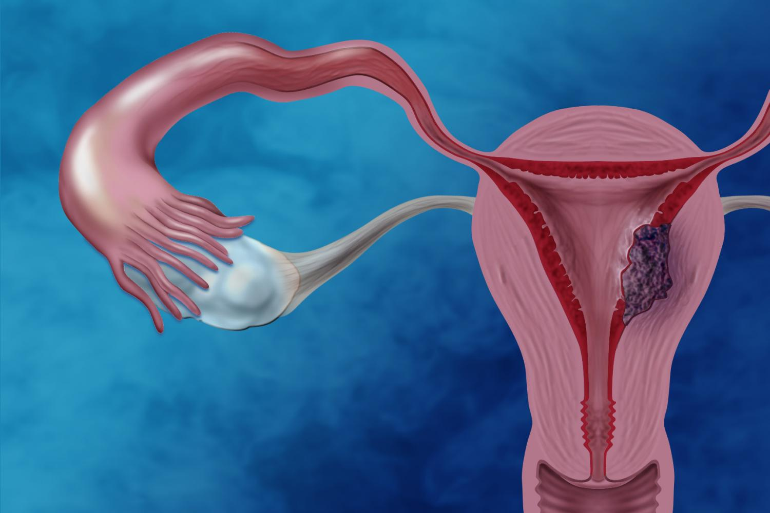 endometrial cancer Endometrial cancer is a type of uterine cancer that involves the lining of the uterus (the endometrium) in the united states, endometrial cancer is the most co.