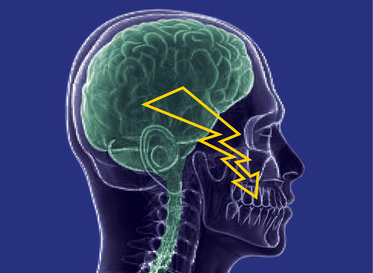 Neuralgia of the facial nerve. Inflammation of the facial nerve - treatment 30