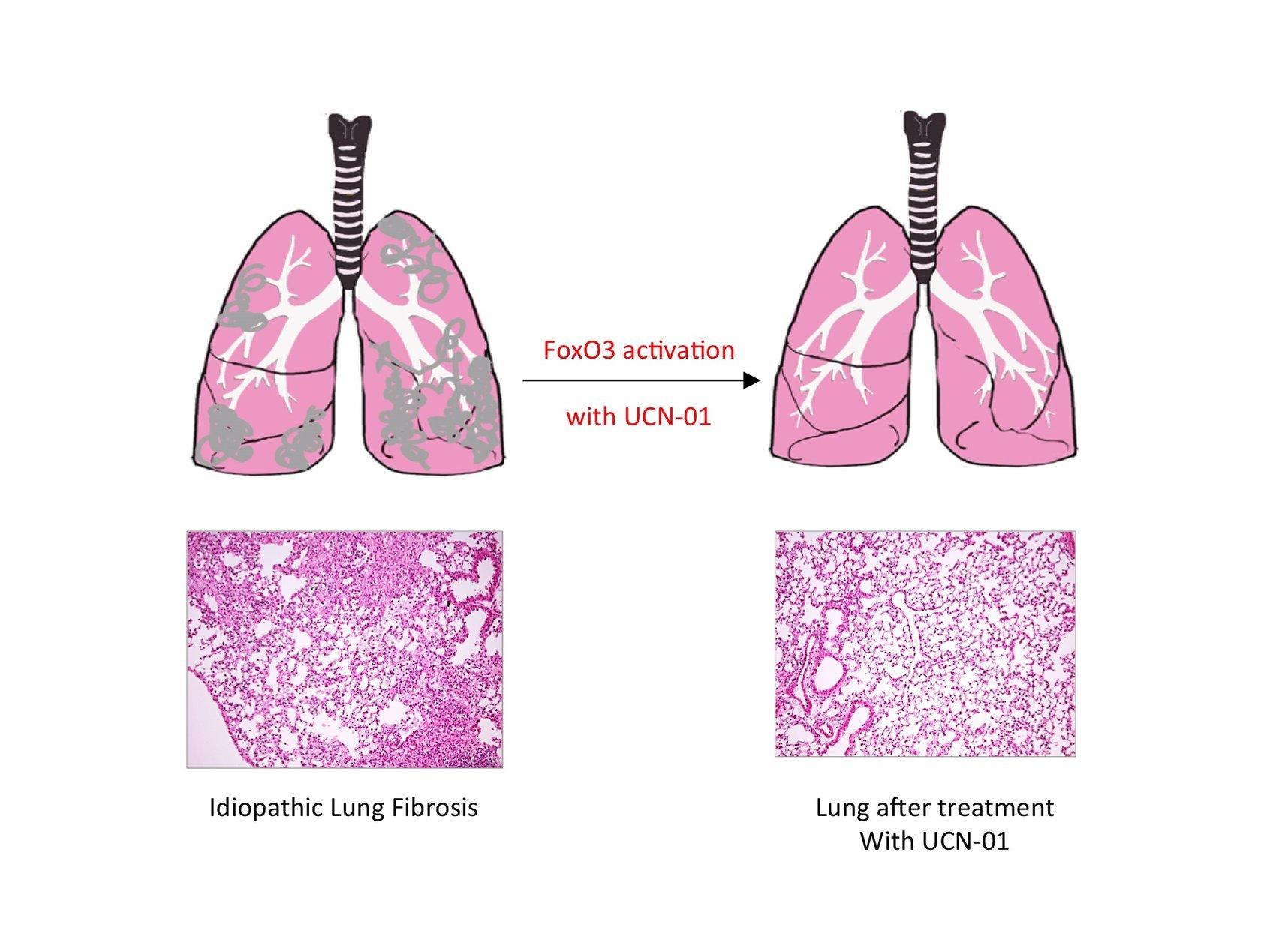 Keuhkofibroosi