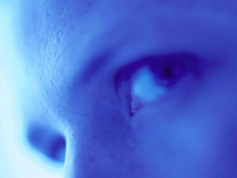 Traumatic optic neuropathy study