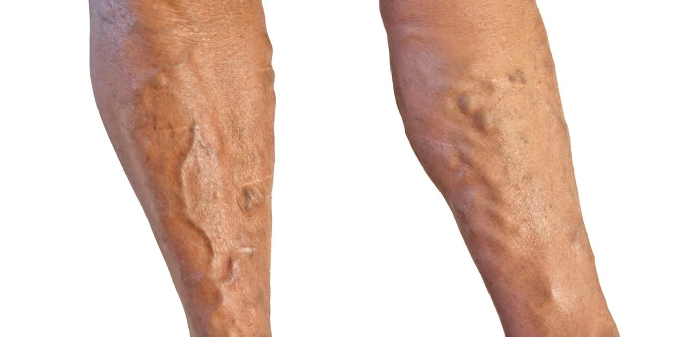 How to treat veins in the legs 24