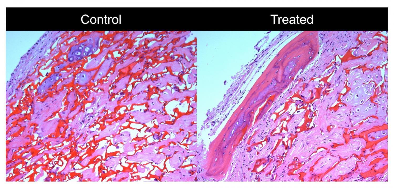 Scientists Find Key Cues To Regulate Bone Building Cells