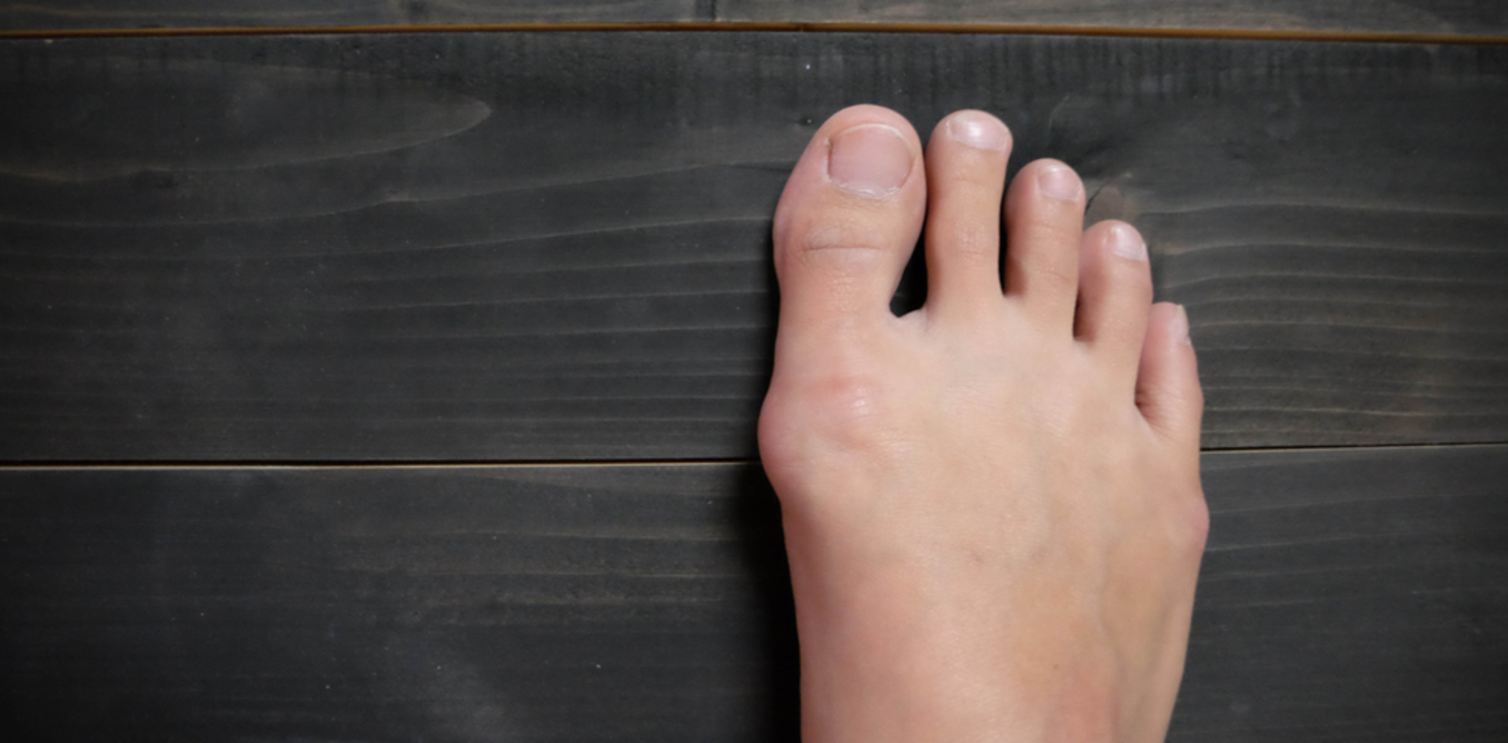 Toe Deformities Should Be Treated Early: Experts