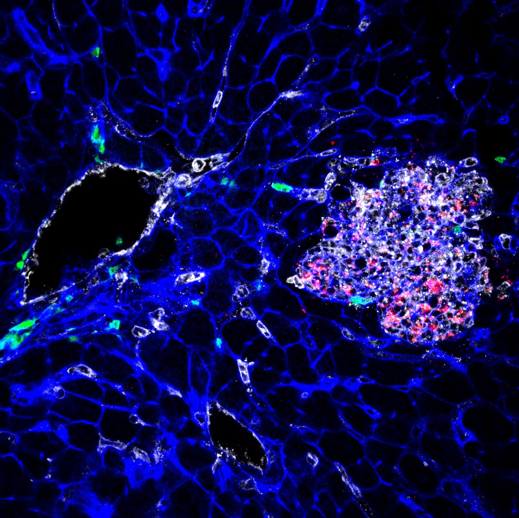 how dormant listeria hides in cells