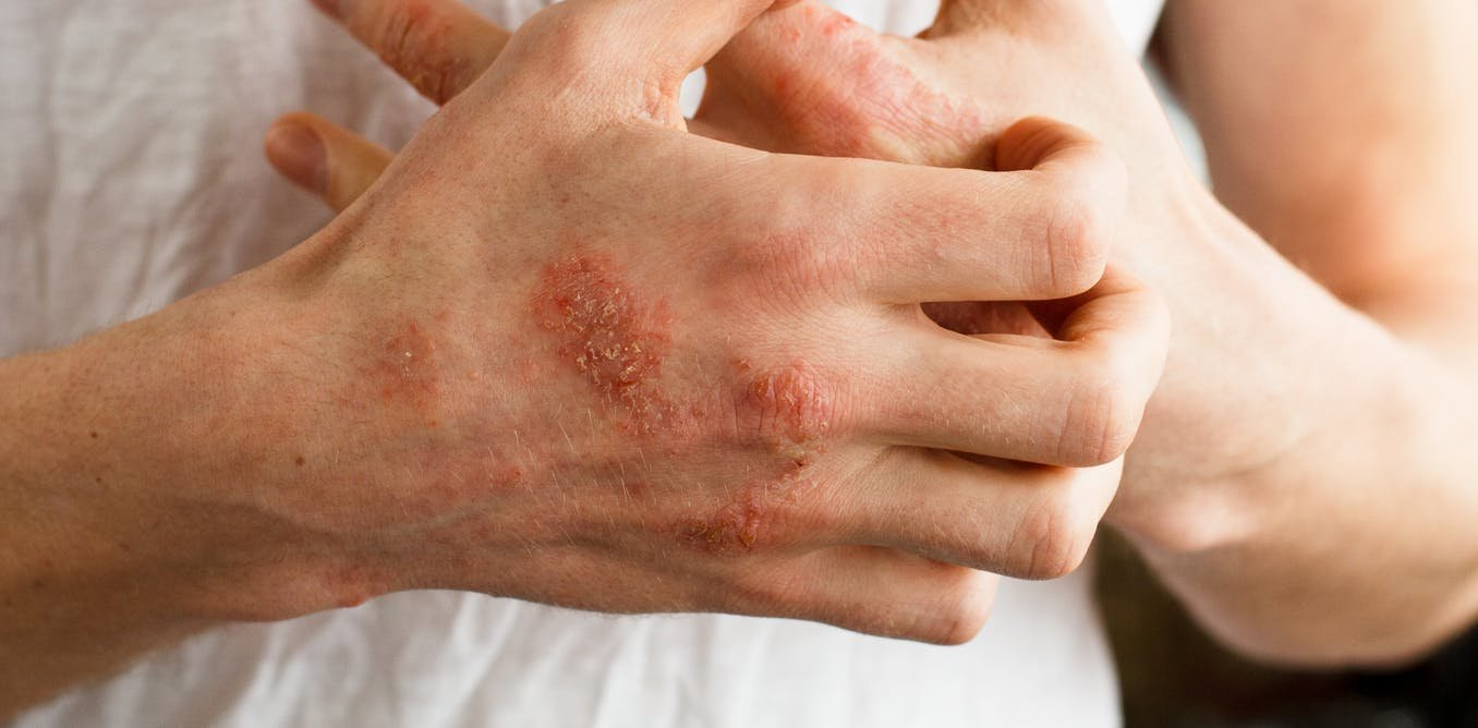 Impetigo Happens When Itching Causes The Skin To Break And Let In Disease Causing Bacteria Credit Shutterstock