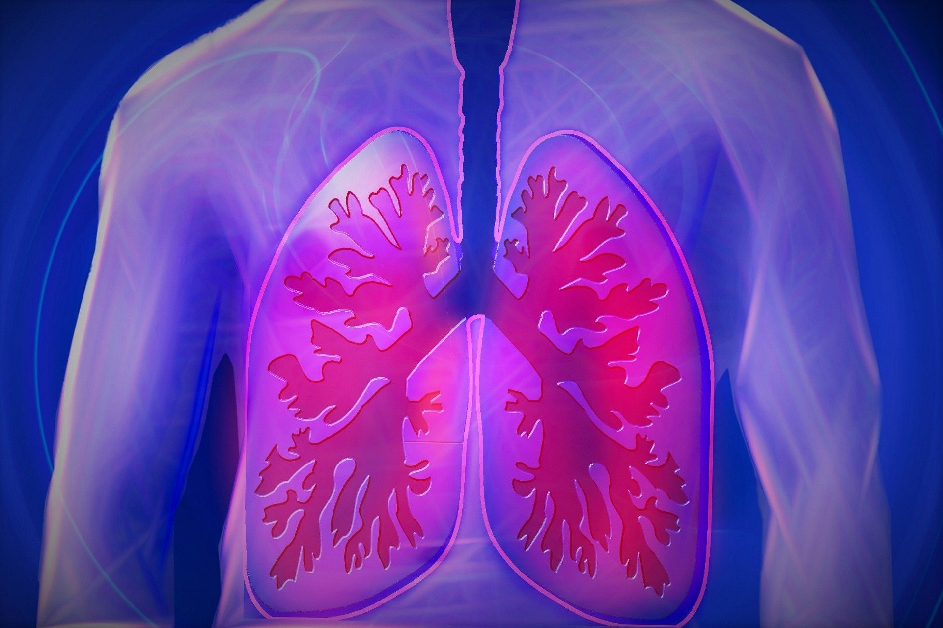 Study Identifies Potential Markers of Lung Cancer – Global Health