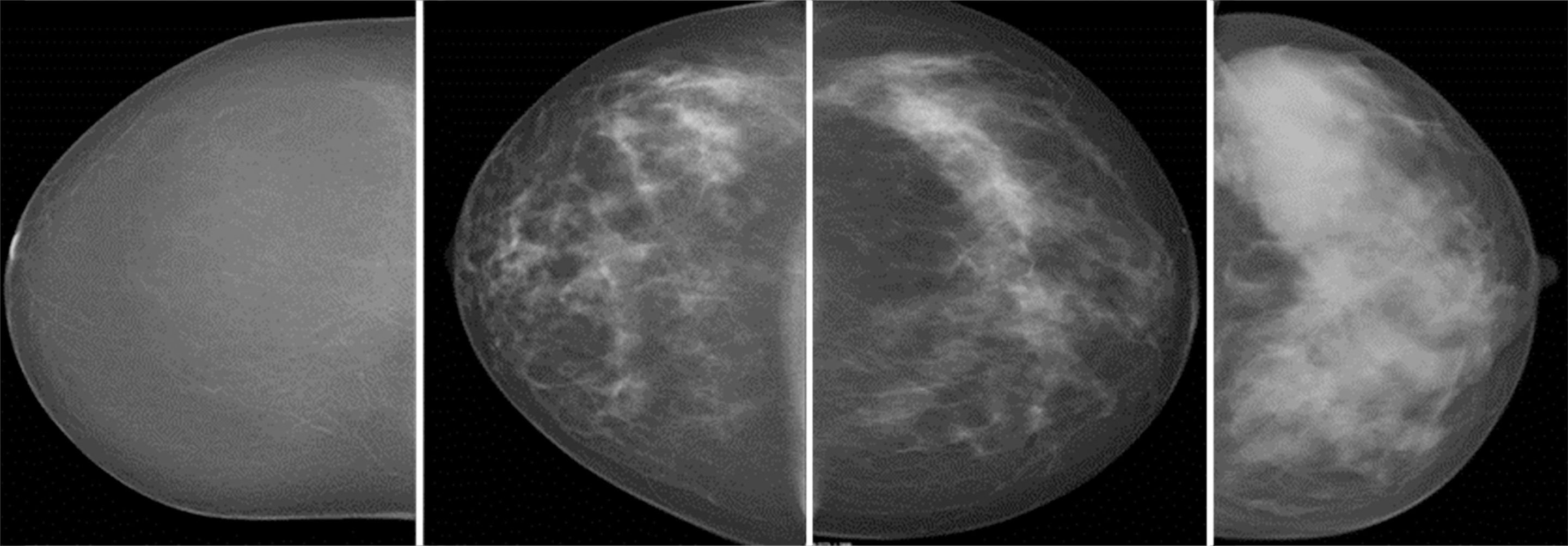 New Study Confirms Higher Cancer Rate In Women With Dense -7707