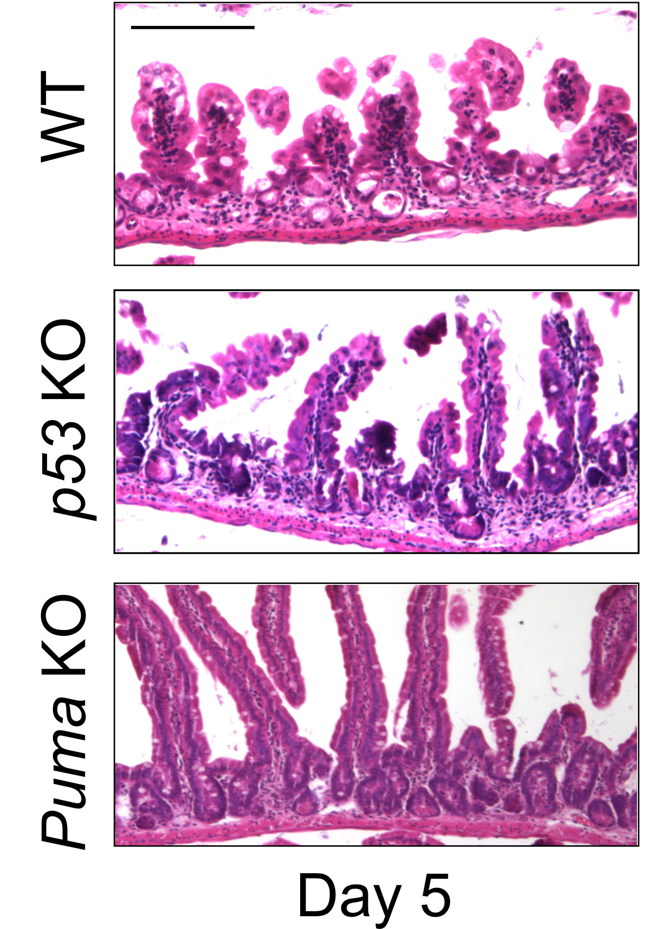A Possible Way To Protect Intestinal Walls From Damage Due To