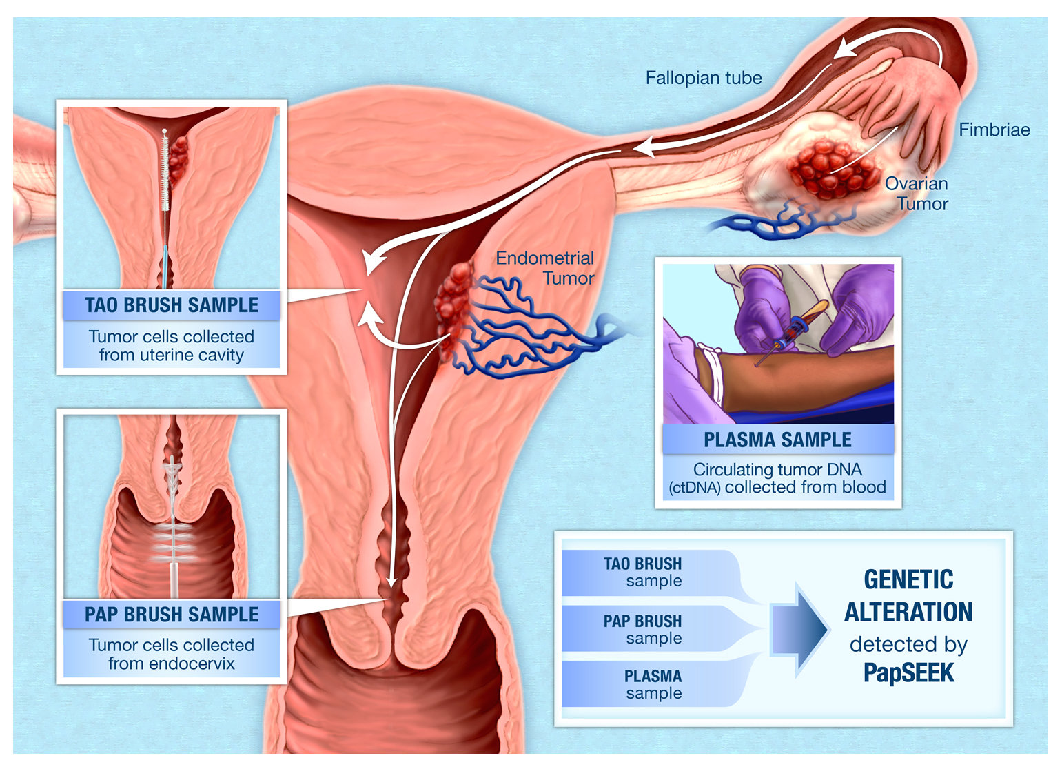 Women Uterus Diseases Test Blood Test Breast Cancer In Hindi