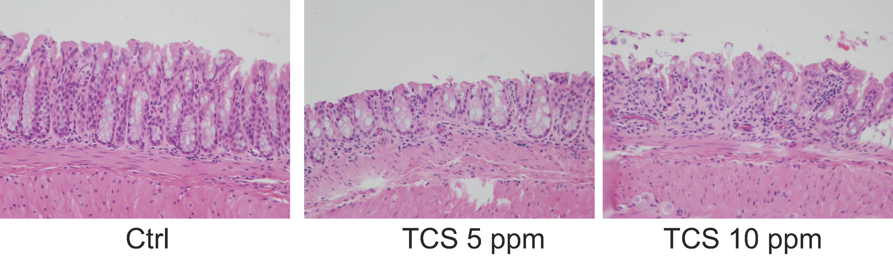 Mouse study links triclosan, a common antimicrobial, to colonic inflammation