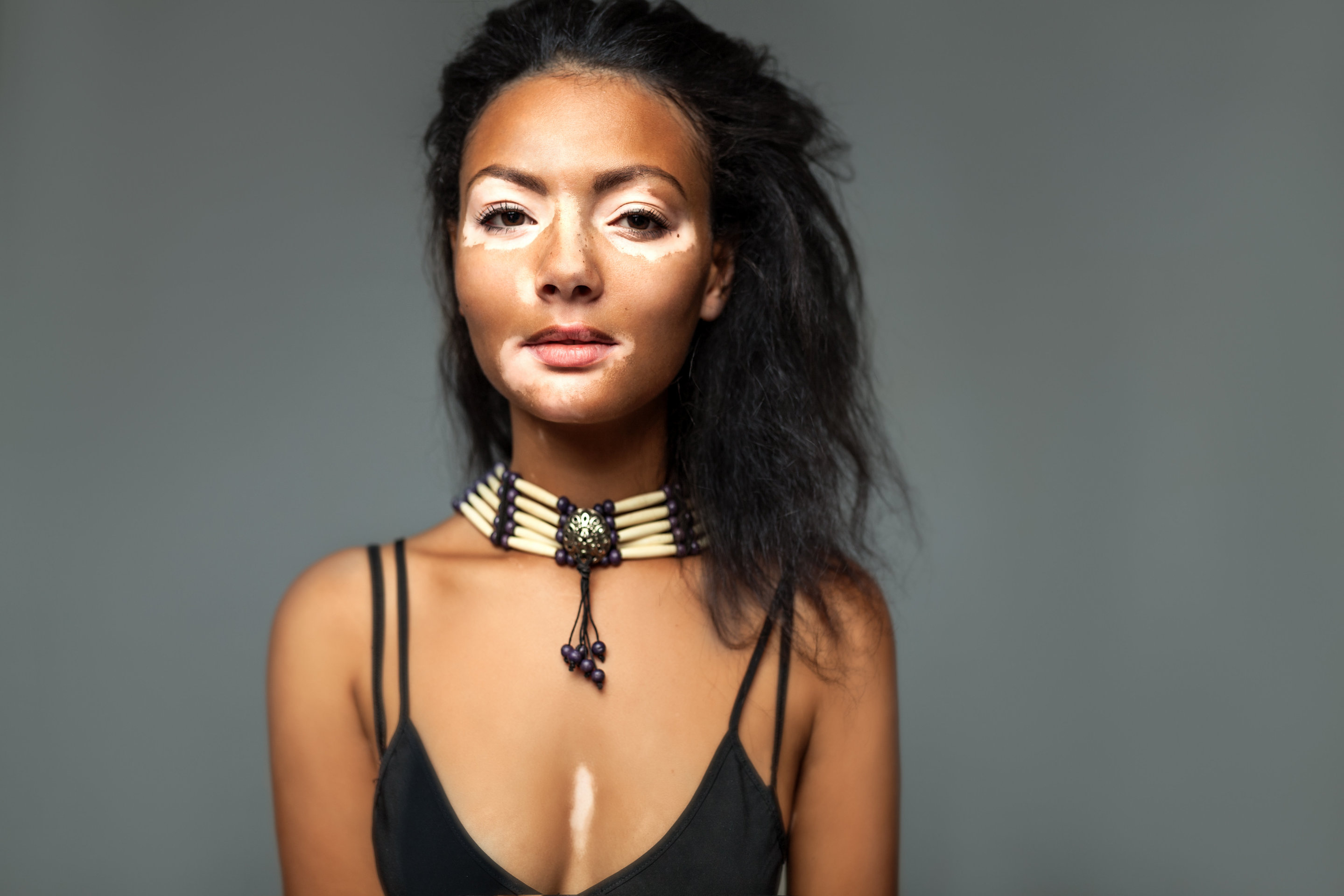 What Is Vitiligo and Who's at Risk