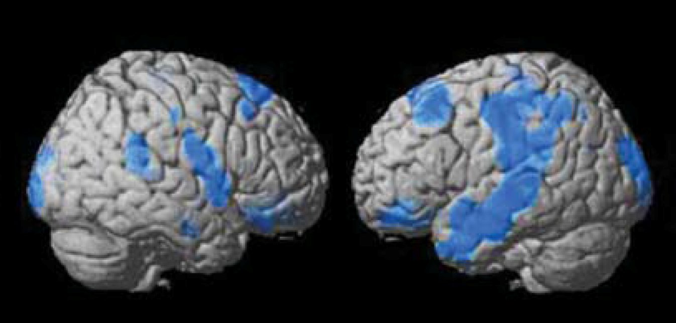 Brain SPECT imaging predicts outcomes in depressed patients