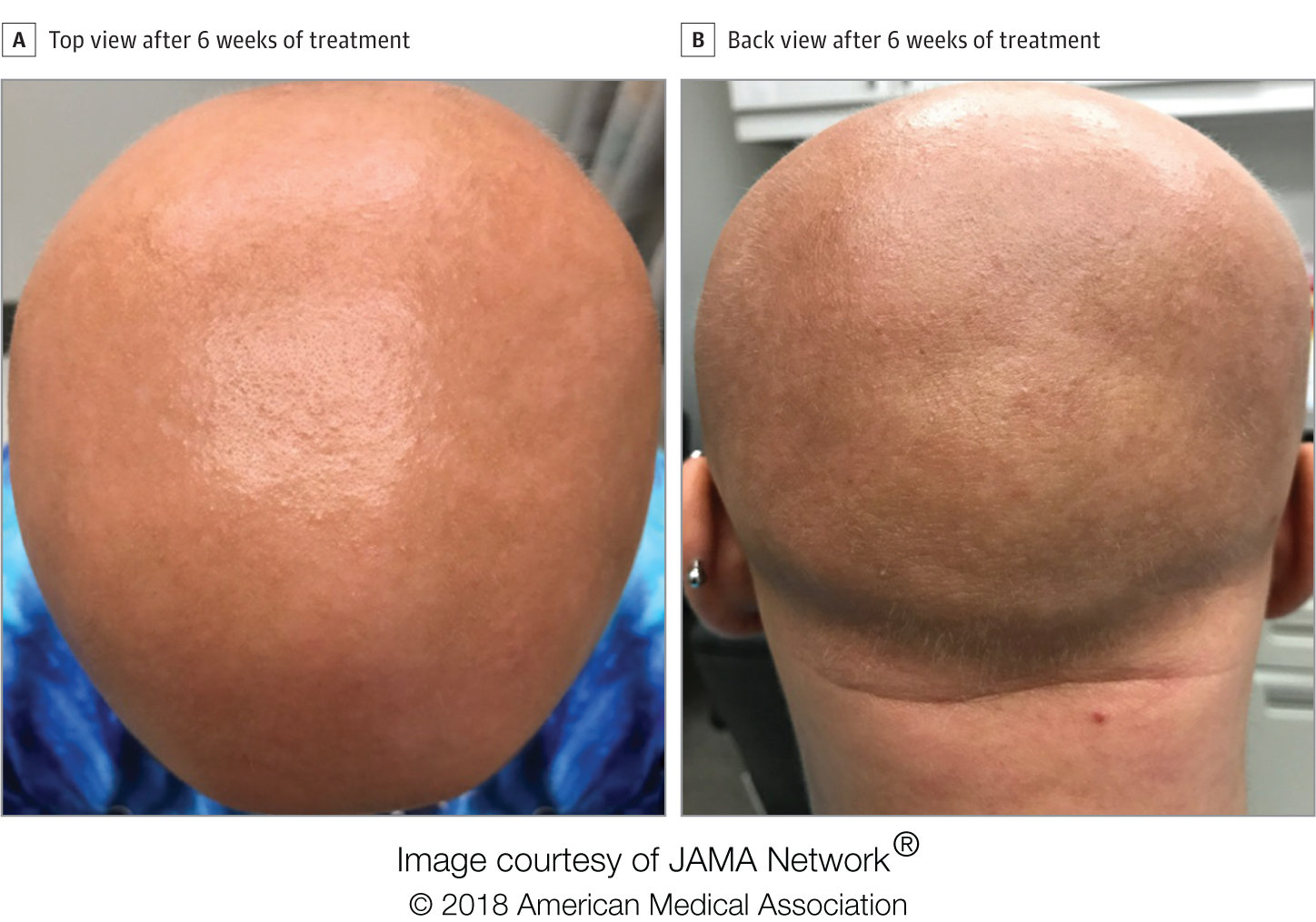 Eczema Drug Restores Hair Growth In Patient With