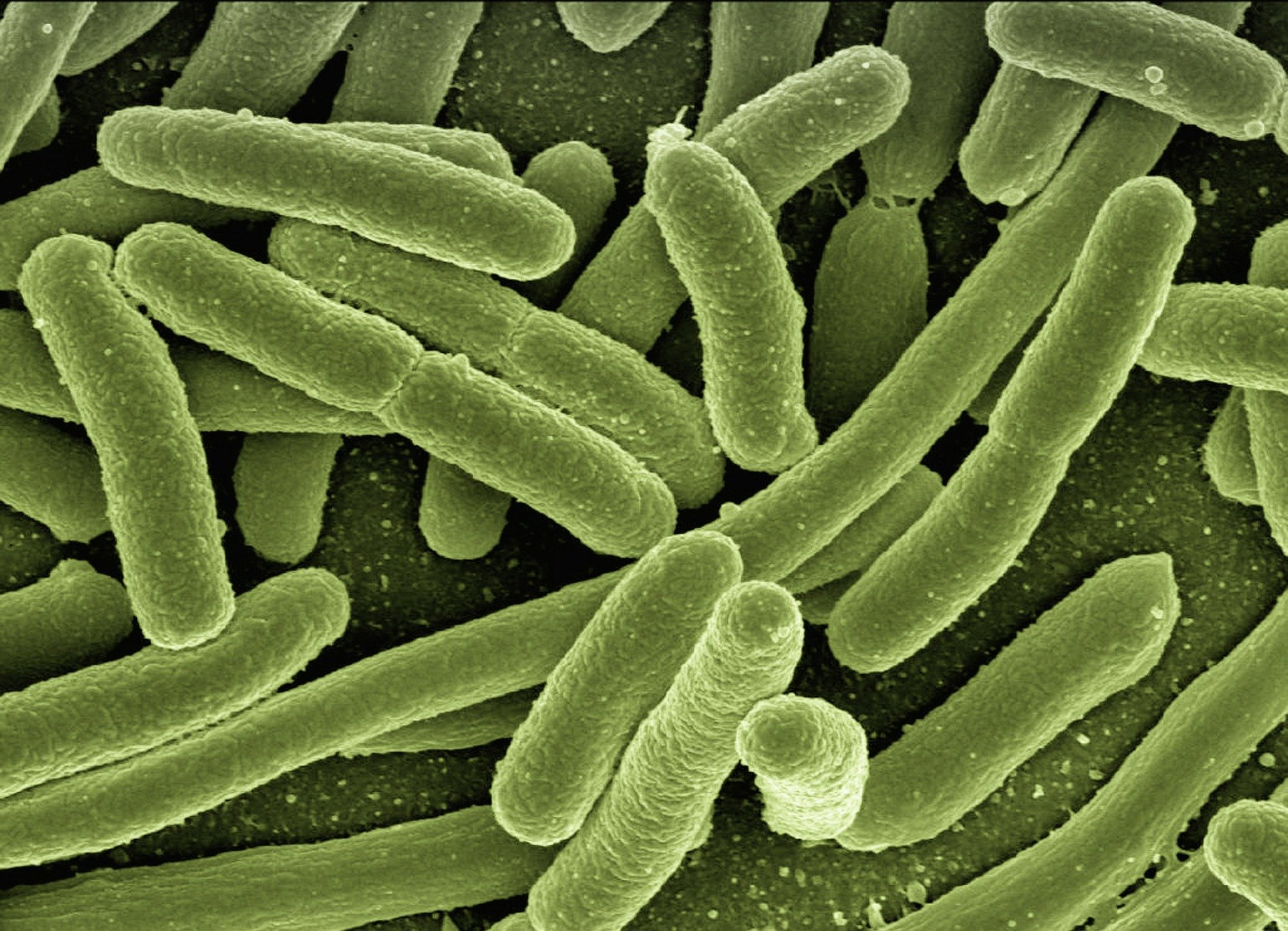 photo of Could better tests help reverse the rise of drug-resistant infections? image
