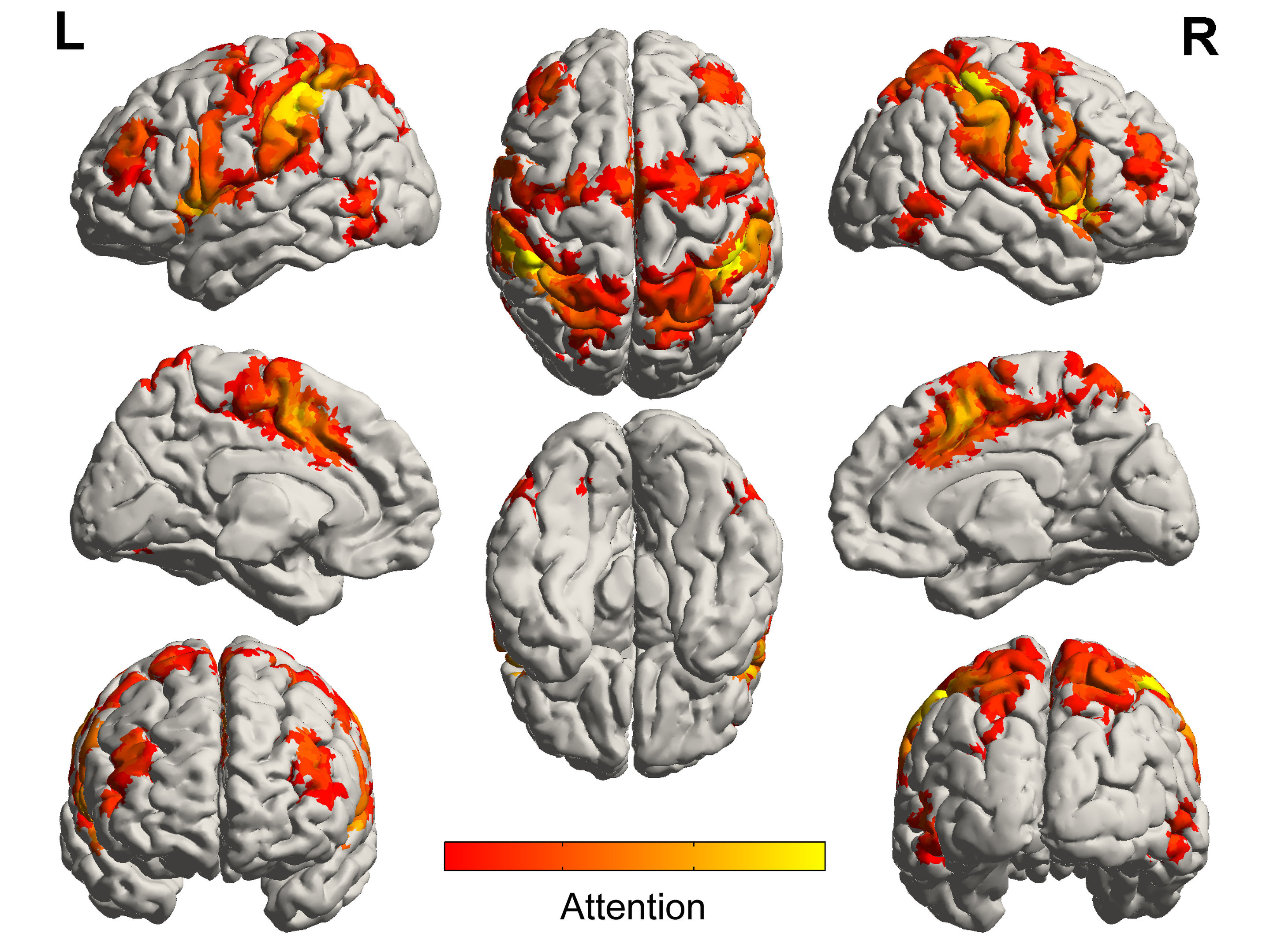 Music activates regions of the brain spared by Alzheimer\'s disease