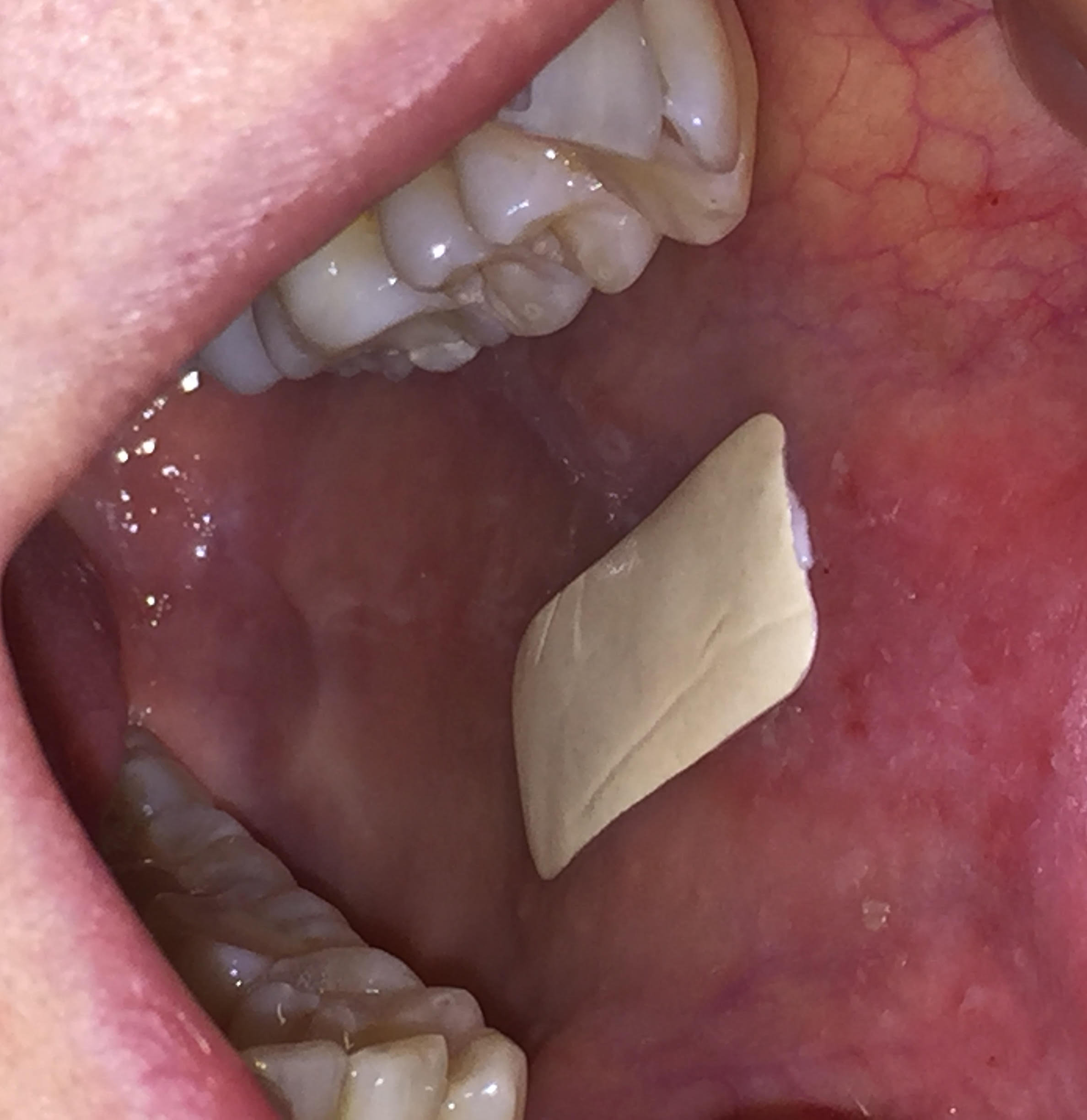 Plaster which sticks inside the mouth could improve treatment of oral conditions