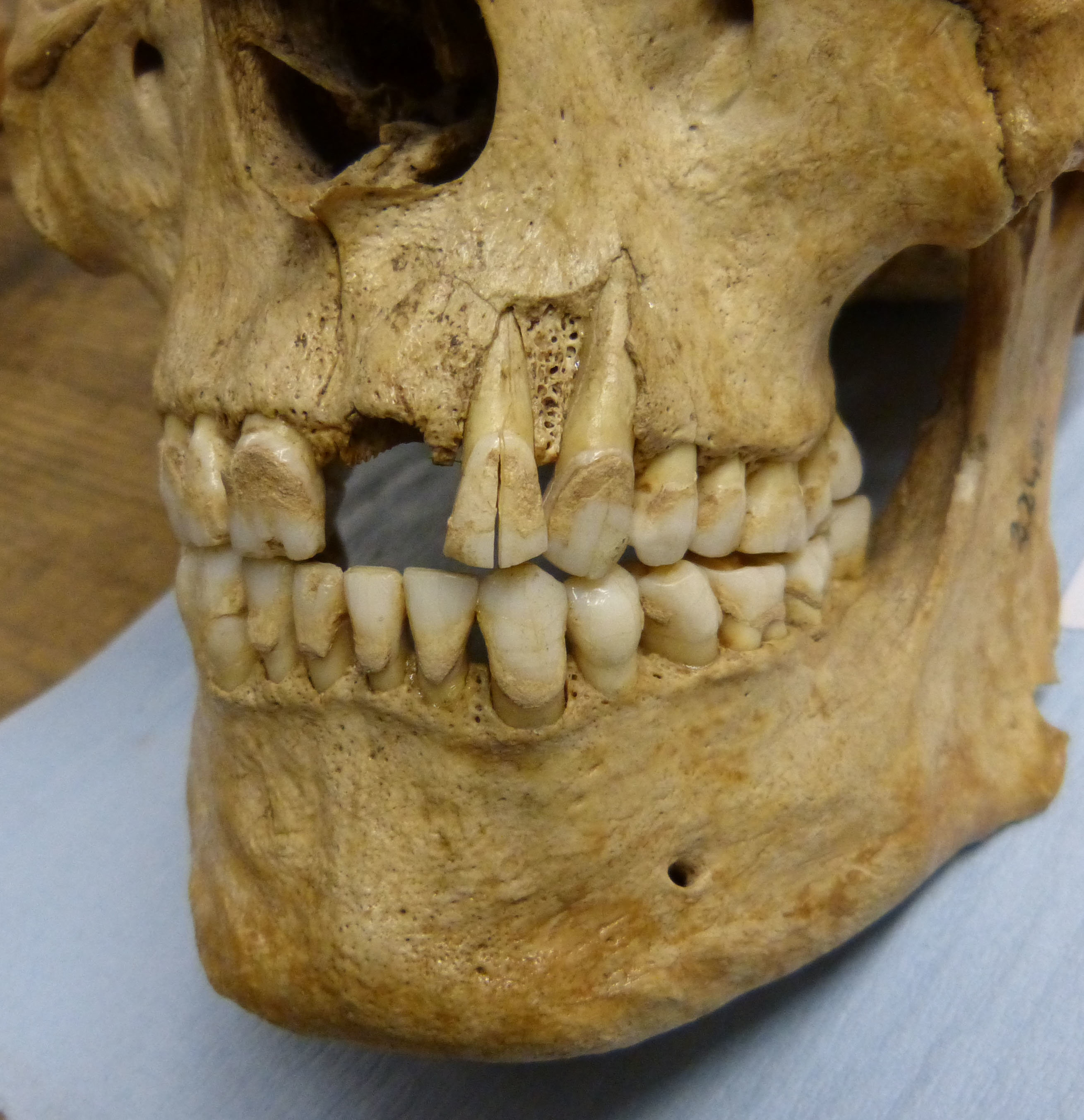 research on british teeth unlocks potential for new insights into
