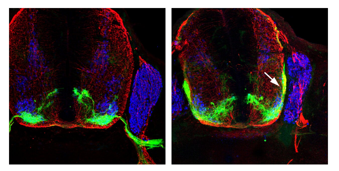 Navigator Neurons Play Critical Role In Sense Of Smell >> Like Mountaineers Nerves Need Expert Guidance To Find Their Way