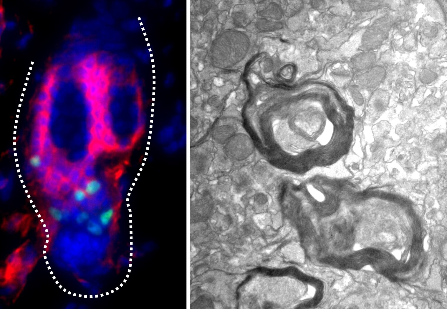 Follicular stem cells are likely to repair damaged neurons