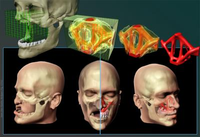 The Neuroscience Behind Stress And >> High-performance engineering used to design facial bone replacements
