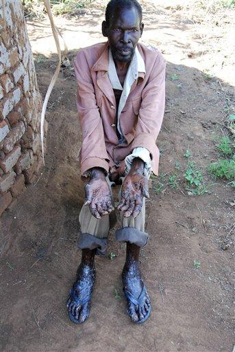 Parkinsons Disease Progression >> Horror disease hits Uganda