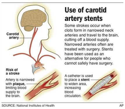 how to tell if your carotid artery is blocked